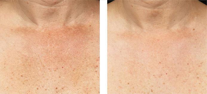 Natural Home Remedies for Neck Wrinkles and Chest Skin