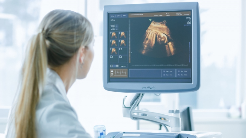 How to Make it as a Sonographer
